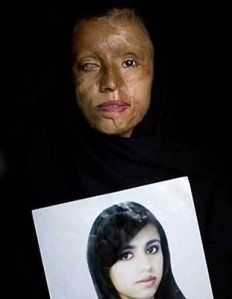 With Acid Burned Woman under Sharia Law
